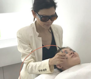 yellow laser treatment