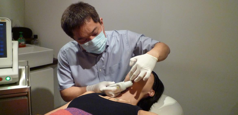 Ulthera for facial sculpting