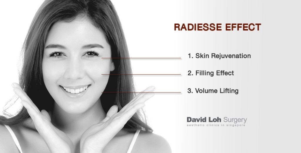How Radiesse Works