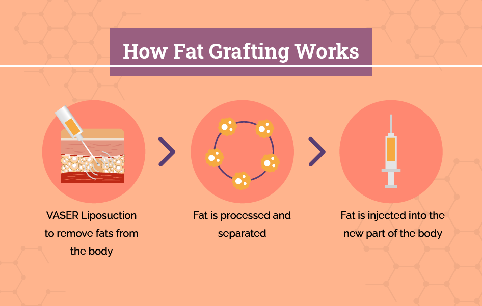 How fat grafting works