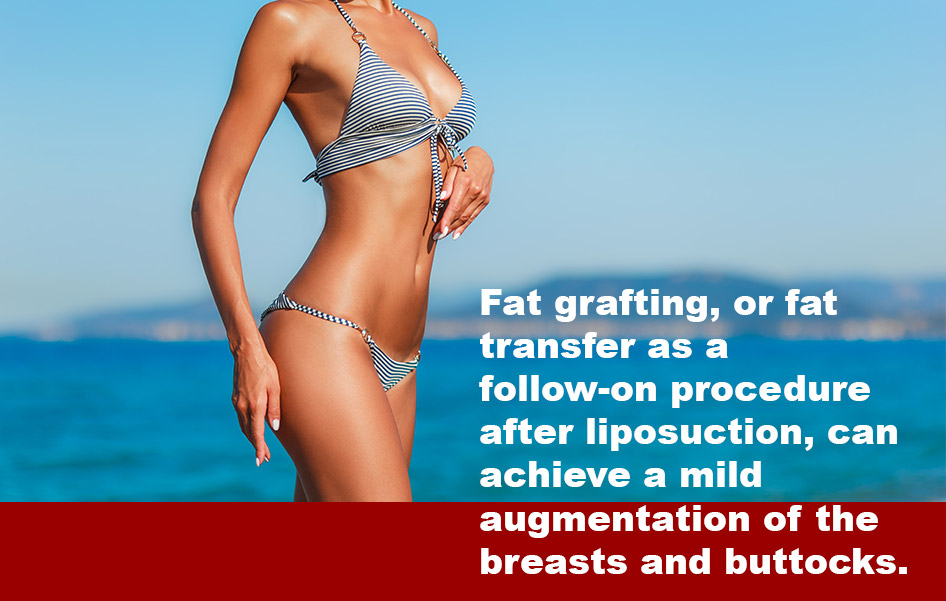 what_is_fat_grafting